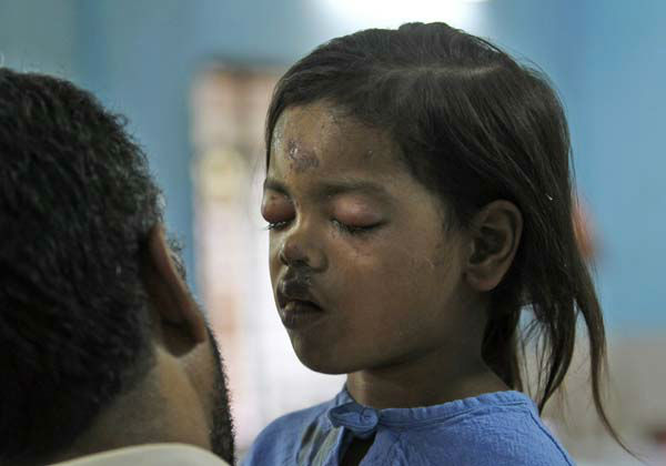"<div class=""meta image-caption""><div class=""origin-logo origin-image ""><span></span></div><span class=""caption-text"">An Indian social worker talks to injured girl Sandhya Thakur, whose mother was killed in a building collapse, at a hospital on the outskirts of Mumba, India, Friday, April 5, 2013. A residential building being constructed illegally on forest land in a suburb of India's financial capital collapsed into a mound of steel and concrete, killing at least 47 people and injuring more than 70 others, authorities said Friday. (AP Photo/Rajanish Kakade) (AP Photo/ Rajanish Kakade)</span></div>"