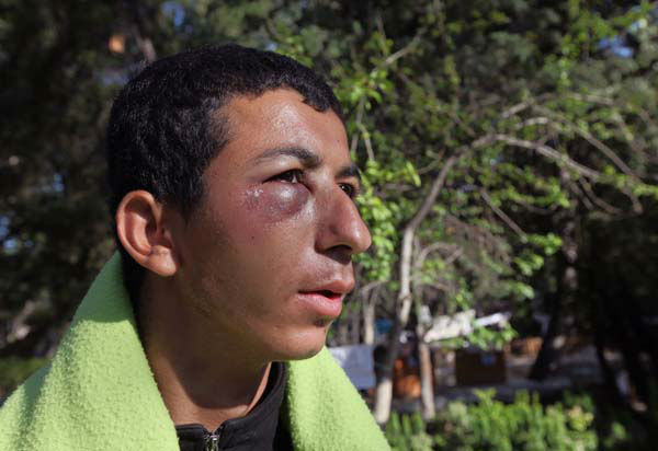 "<div class=""meta image-caption""><div class=""origin-logo origin-image ""><span></span></div><span class=""caption-text"">An injured protester walks in Kugulu Park early morning in Ankara, Turkey, Tuesday, June 11, 2013. Hundreds of police in riot gear forced through barricades in Taksim Square early Tuesday, pushing many of the protesters who had occupied the square for more than a week into a nearby park in Istanbul. Turkey's Prime Minister Recep Tayyip Erdogan made it more than clear that he had come to the end of his tolerance. (AP Photo/Burhan Ozbilici) (AP Photo/ Burhan Ozbilici)</span></div>"