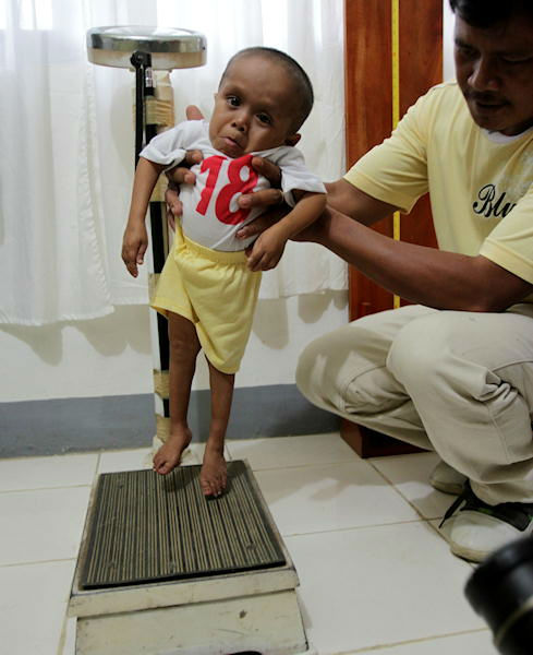 Junrey Balawing prepares to be weighed by his father prior to a series of measurements conducted by a Guinness World Records representative at Sindangan Health Center, Sindangan township, Zamboanga Del Norte province in Southern Philippines Saturday June 11, 2011, the eve of his 18th birthday which is coincidentally the Philippines Independence Day. Officials said Saturday Balawing was measured at 24 and 1&#47;4 inches &#40;about 61 centimeters&#41; lying down and about two inches shorter than the current record holder Khagendra Thapa Magar of Nepal and is expected to be officially named as the world&#39;s shortest living man when he turns 18 Sunday. <span class=meta>(Photo&#47;AP)</span>