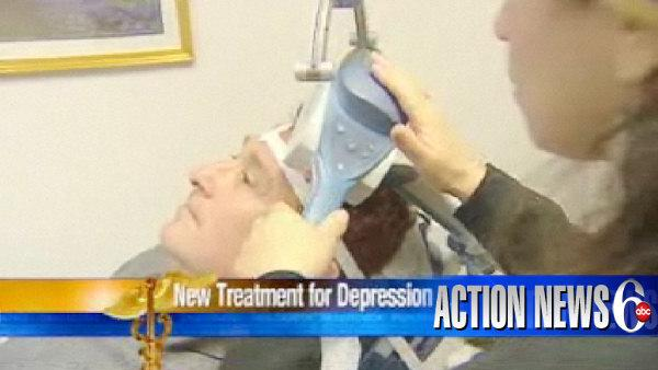 VIDEO: TMS therapy