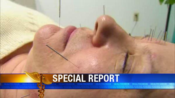 Fighting wrinkles with acupuncture