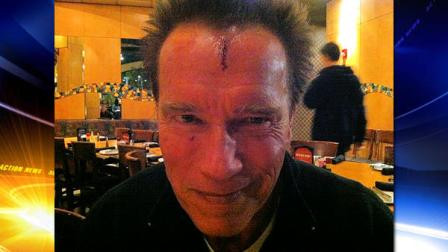 Arnold Schwarzenegger posted this picture on Twitter, saying that he got a little banged up on the set Thursday of The Last Stand.