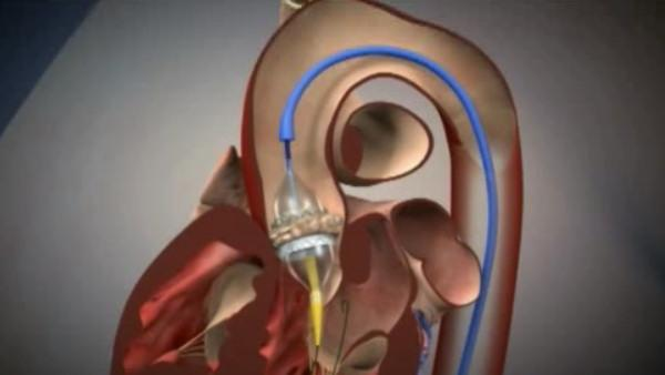 FDA favors innovative heart valve for the frail