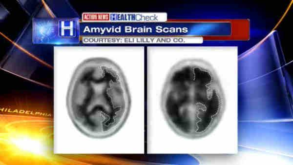 New tool could help in Alzheimer's Disease diagnosis