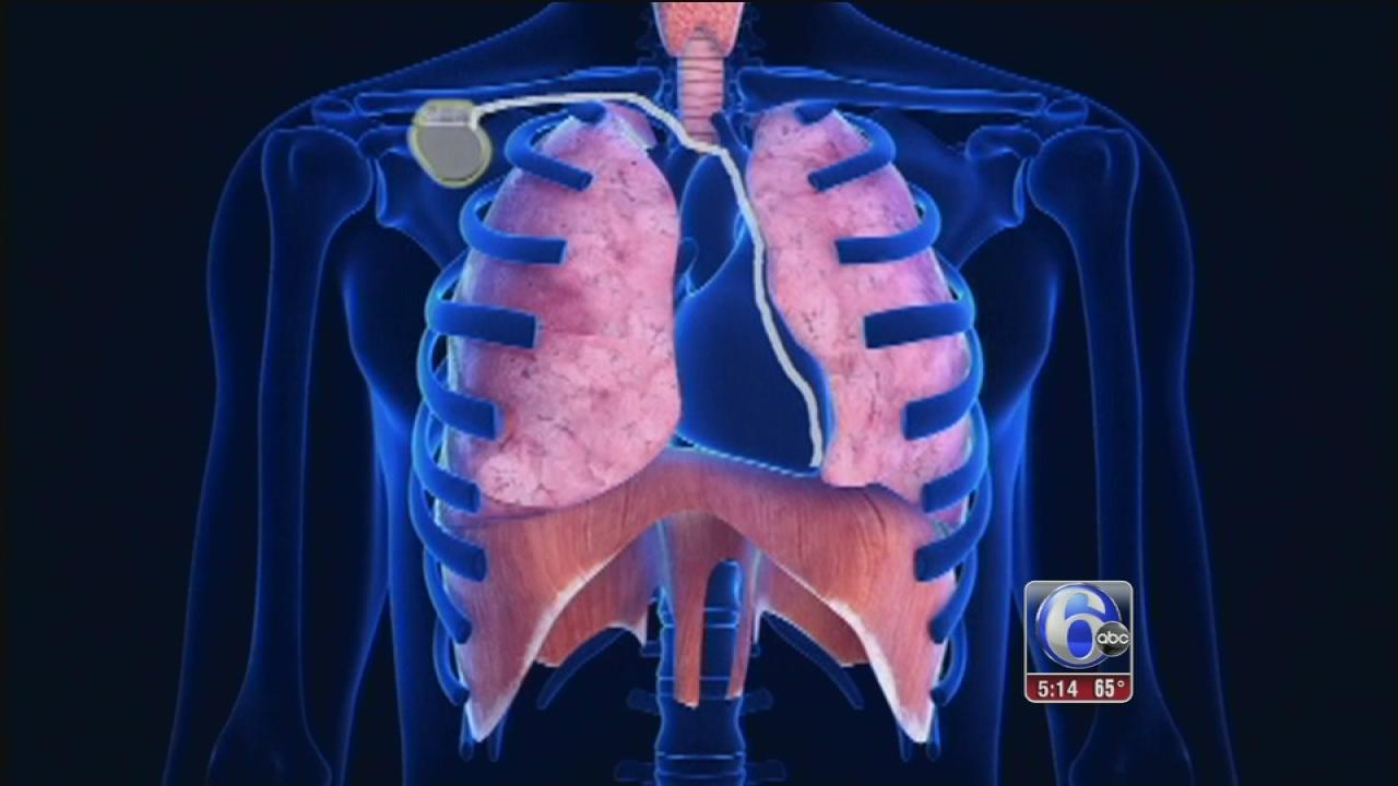 Implant test eases sleep apnea incidents