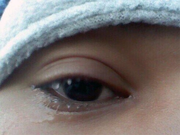 "An Action News viewer posted this #6abcFrozenFaces pic on January 7, 2013: ""If you look closely, my eyes were so watery from the wind that my tears froze on my lashes."""