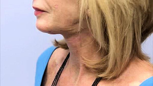 'Boomer Necklift' offers quicker recovery time