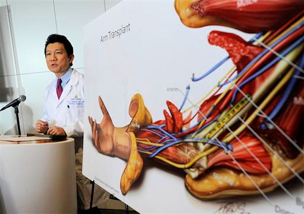 "<div class=""meta ""><span class=""caption-text "">W.P. Andrew Lee, M.D. talks about the bilateral arm transplant on Infantryman Brendan M. Marrocco during a news conference Tuesday, Jan. 29. 2013 at Johns Hopkins hospital in Baltimore. Marrocco received a transplant of two arms from a deceased donor after losing all four limbs in a 2009 roadside bomb attack in Iraq. (AP Photo/Gail Burton)</span></div>"