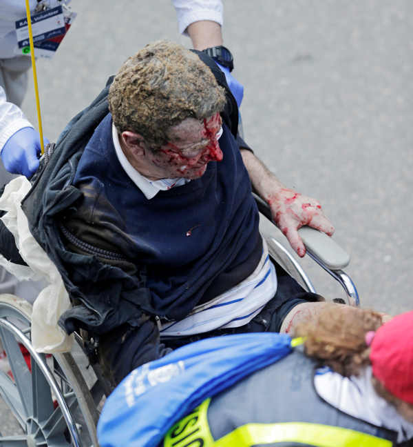 Medical workers aid an injured man at the finish line of the 2013 Boston Marathon following an explosion there Monday, April 15, 2013 in Boston. Two explosions shattered the euphoria at the finish line on Monday, sending authorities out on the course to carry off the injured while the stragglers were rerouted away from the smoking site of the blasts. <span class=meta>(AP Photo&#47;Charles Krupa)</span>