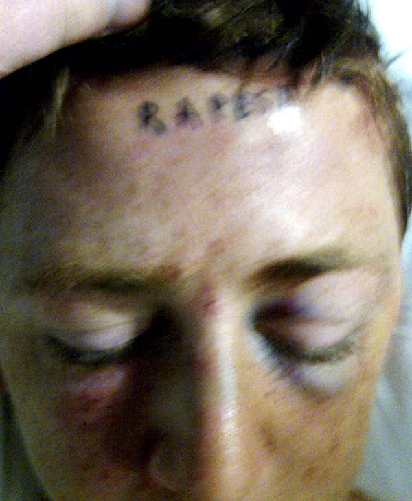 "In this photo provided by Lucy Ford, the word ""rapest"" is pictured tattooed on the forehead of her son, Stetson Johnson, as he lies in bed in a hospital room in Oklahoma City, in April, 2011. Johnson said Wednesday that tattoos were forcibly placed on his forehead and chest, and he was beaten unconscious with a baseball bat in the April 17 attack. (AP Photo/Lucy Ford)"