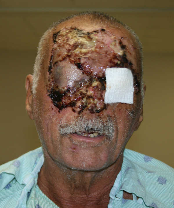 In a photo released by Jackson Memorial Hospital in Miami, face-chewing victim Ronald Poppo is shown.