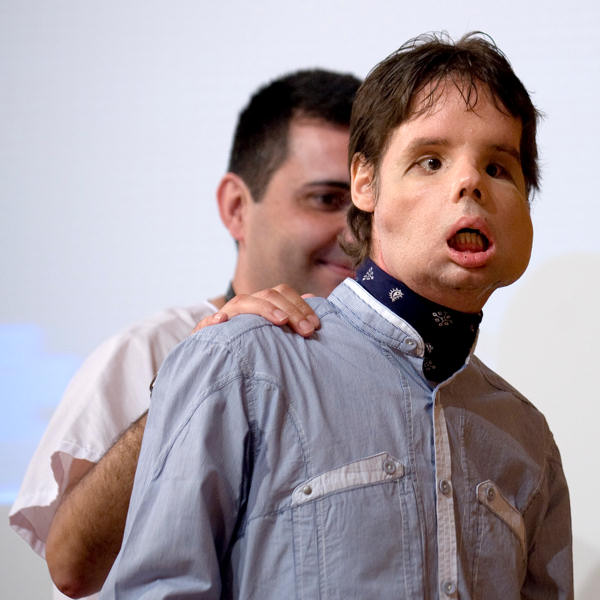 Oscar, right, a man who underwent a full-face transplant in April, and Dr. Joan Barret  after appearing in public for the first time in a news conference at the Vall d&#39;Hebron Hospital in Barcelona, Spain, Monday, July 26, 2010. A 30-member medical team led by the Spanish doctor Joan Barret  carried out a full-face transplant, giving a young man who lost his in an accident a new nose, skin, jaws, cheekbones, teeth and other features.  <span class=meta>(AP Photo&#47;David Ramos)</span>