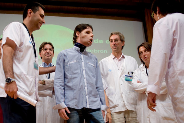 Oscar, center, a man who underwent a full-face transplant in April, stands beside Dr. Joan Barret, left, and is surrounded by doctors as he appears in public for the first time at a news conference in the Vall d&#39;Hebron Hospital in Barcelona, Spain, Monday, July 26, 2010. A 30-member medical team led by the Spanish doctor Joan Barret  carried out a full-face transplant, giving a young man who lost his in an accident a new nose, skin, jaws, cheekbones, teeth and other features.  <span class=meta>(AP Photo&#47;David Ramos)</span>