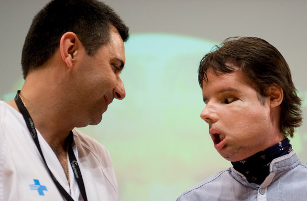 Oscar, right, a man who underwent a full-face transplant in April, poses with the Spanish Dr. Joan Barret  for the photographers as he appears in public for the first time in a news conference at the Vall d&#39;Hebron Hospital in Barcelona, Spain, Monday, July 26, 2010. A 30-member medical team led by the Spanish doctor Joan Barret carried out a full-face transplant, giving a young man who lost his in an accident a new nose, skin, jaws, cheekbones, teeth and other features. <span class=meta>(AP Photo&#47;David Ramos)</span>