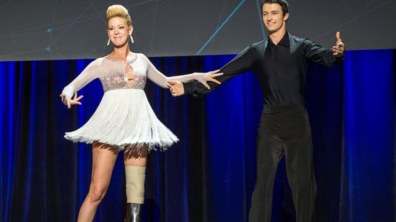 Adrianne Haslet-Davis, left, performs on stage with dancer Christian Lightner at the 2014 TED Conference, March 19, 2014, in Vancouver.  James Duncan Davidson/AP Photo