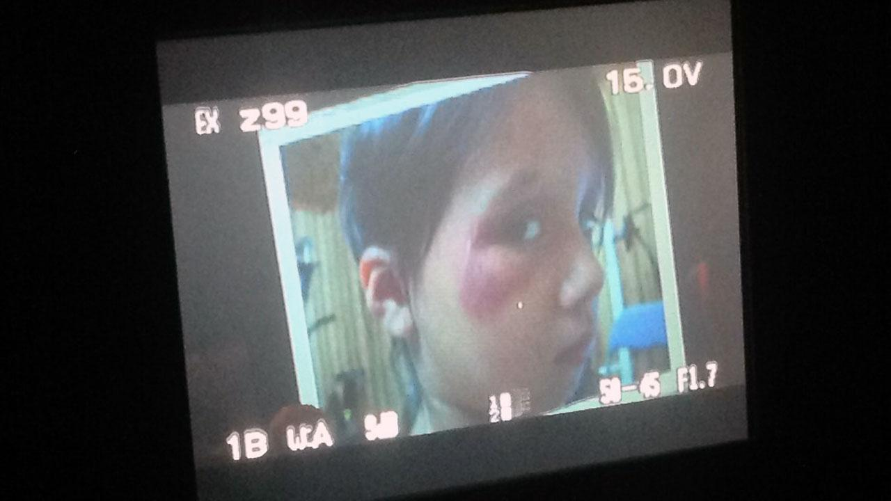 In court Friday, prosecutors showed photos of 4-year-old Teghan Skiba with a black eye she allegedly got from her mothers boyfriend, Jonathan Richardson, about a month before her 2010 death.