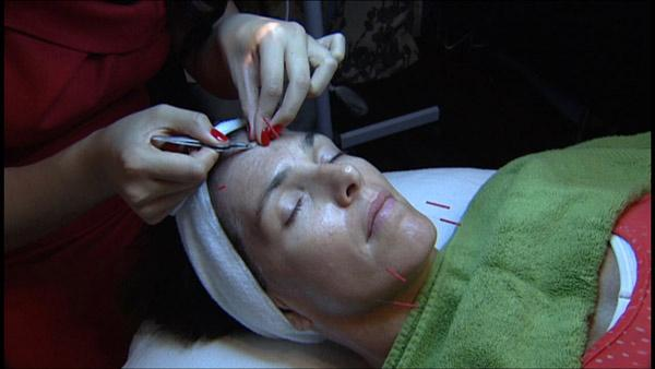 How Cosmetic Acupuncture Can Make You Look Years Younger