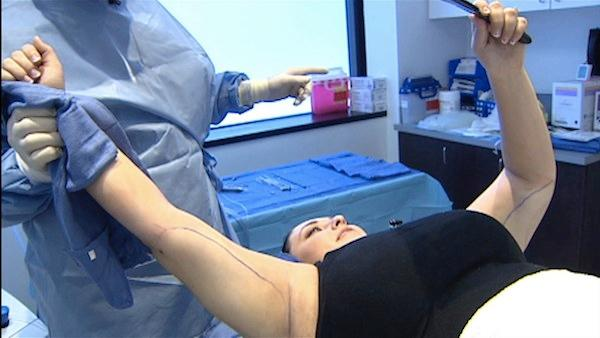 The New No-Needle, No-Scalpel Liposuction