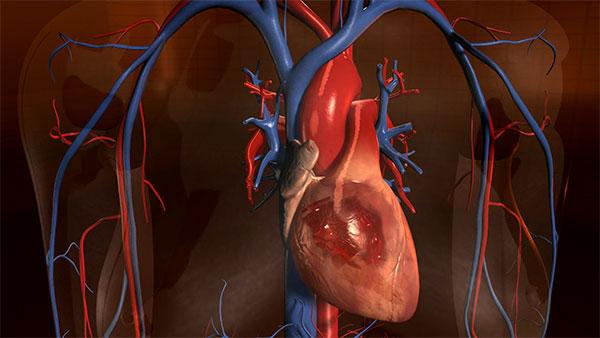Complications Of Hypertension. Risks and Complications of